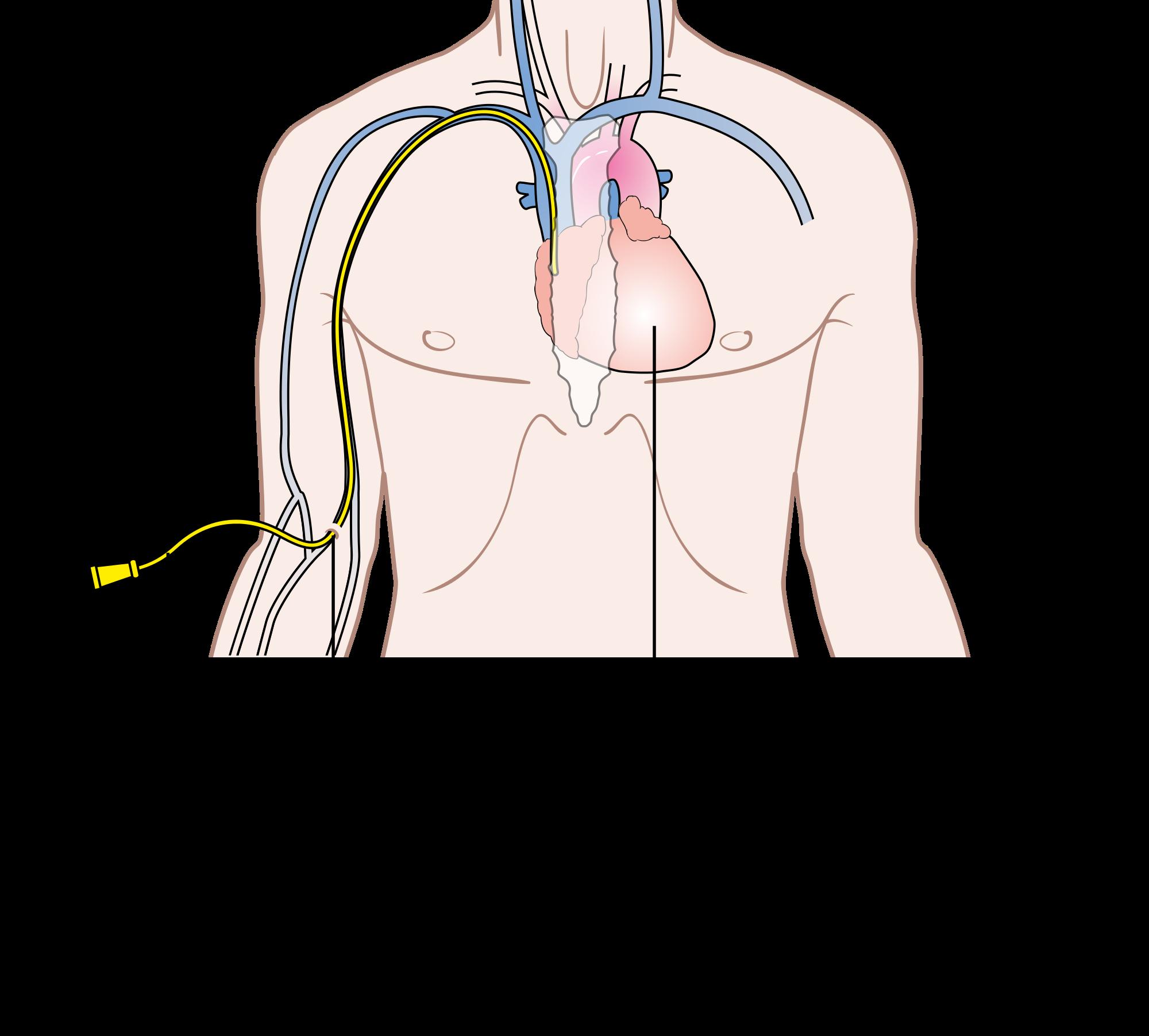 Before Your Transplant Weill Cornell Bone Marrow Transplant Program